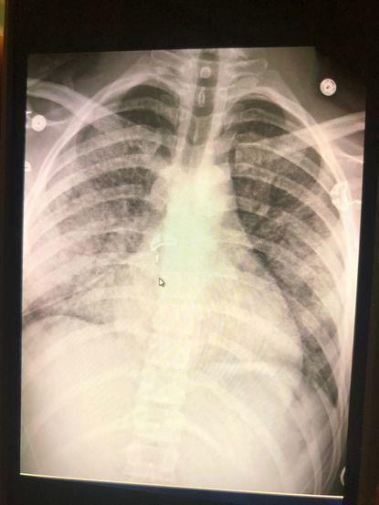 赫根瑞德的胸部X光片,显示可能因电子烟引起的发炎症状医生表示他的肺部状况糟如7...