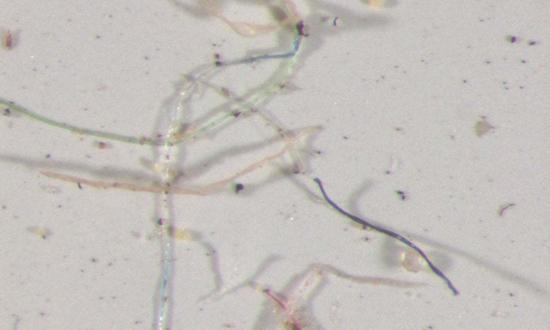 科罗拉多州采集的雨水经显微镜可看到,雨水中含有不同颜色塑胶微粒。图取自美国地质调查局