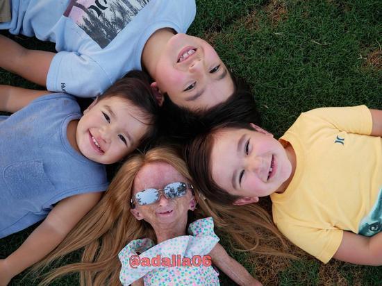 美國的11歲女童患有早衰症,年紀輕輕看起來卻像老年人一樣,但她未因此放棄自己,在Youtube上設立頻道、分享生活,目前已有超過150萬粉絲。圖截自Facebook