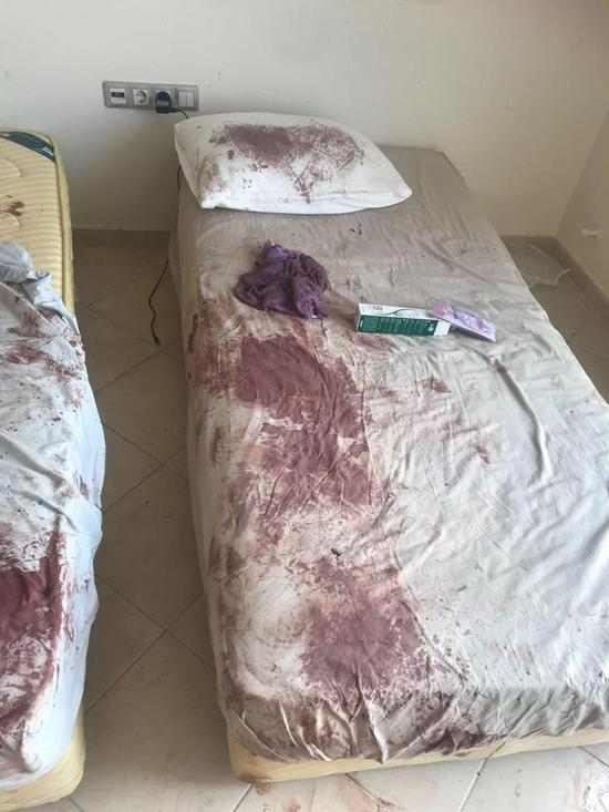 希金森房内的床单、墙壁、地板血迹斑斑,她也被打到不成人形。图/取自《太阳报》